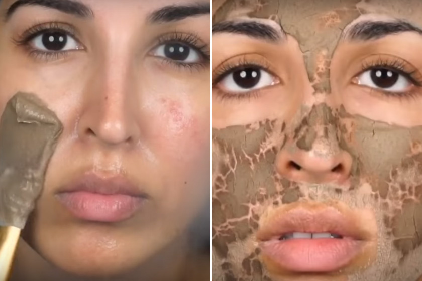 arcpakolások vörös foltok ellen