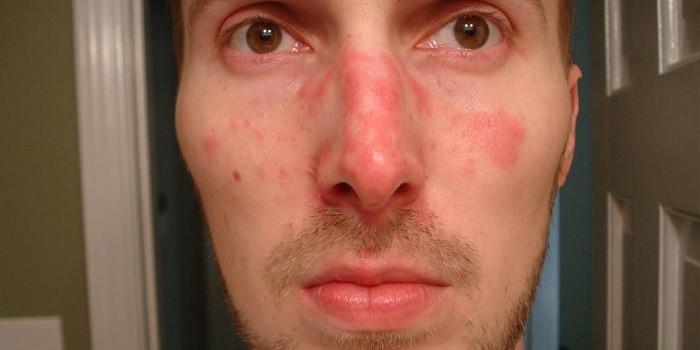 az arcon vörös domború foltok piros ovális folt a bőrfotón