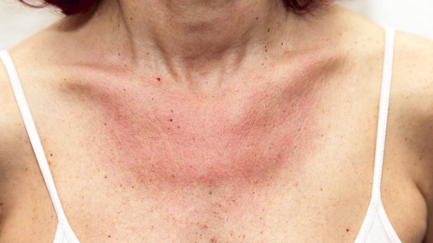 a bőr viszket és vörös foltok jelennek meg