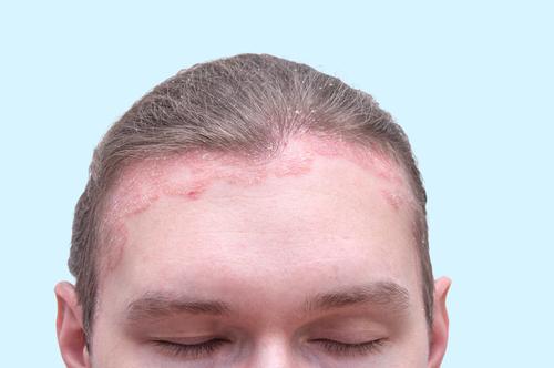 pikkelysömör a fejen kezels s hogyan néz ki vörös és lila foltok a hasán