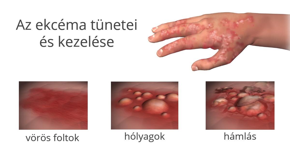 vörös foltok látása