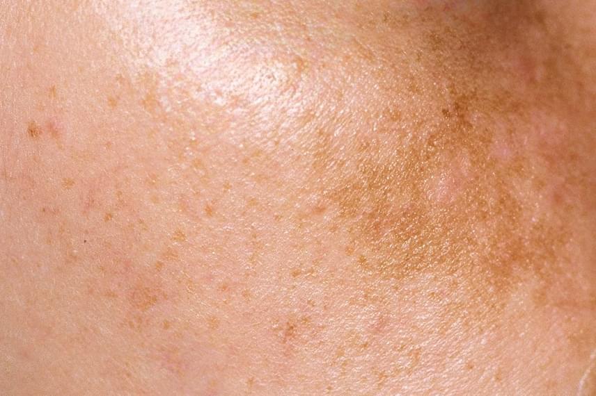 kiütés a bőrön vörös foltok formájában az állon vörös foltok a kar fotóján