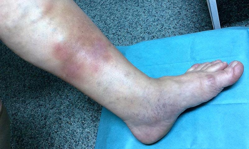 artériás magas vérnyomás kezelése pikkelysömörben
