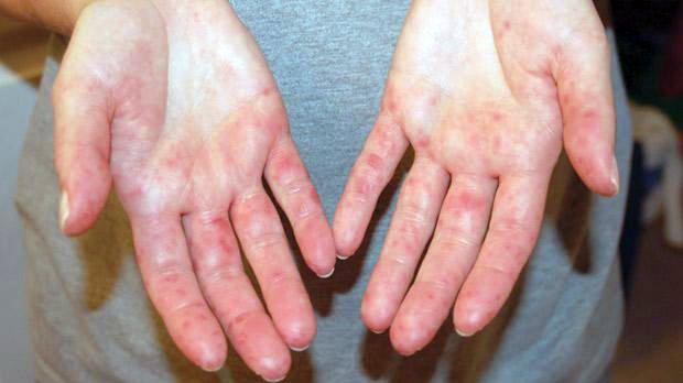 cukorbetegséggel a vörös foltok kezén pikkelysömör a lábakon fotókezelés