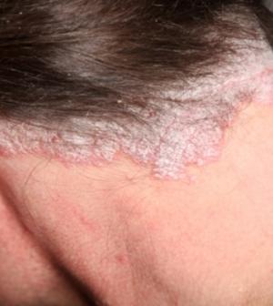 legújabb fejbőr pikkelysömör gyógyszerek