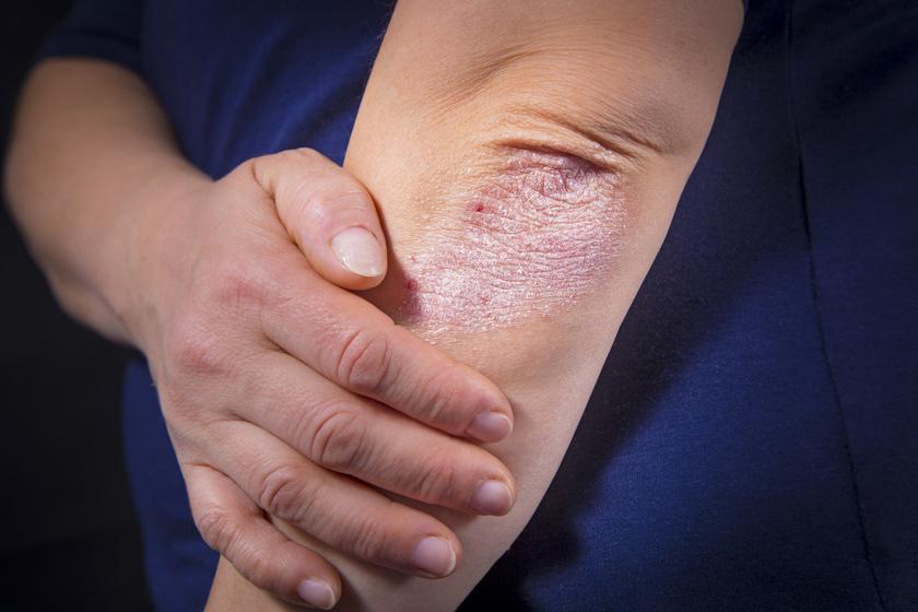 a lábak alatt vörös foltok borítják