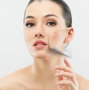 hogyan lehet megszabadulni a pelyhes vörös foltoktól az arcon)