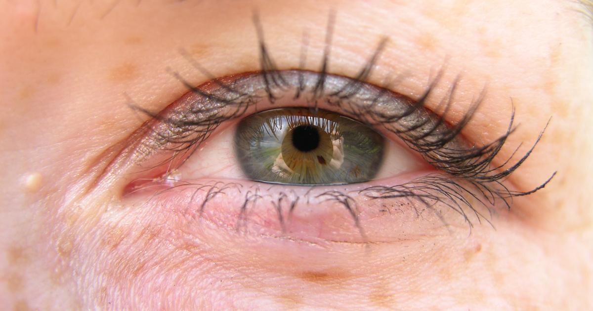 a szem alatt a vörös folt leválik, mint elkenődik az arcát vörös foltok borítják, mit kell tenni
