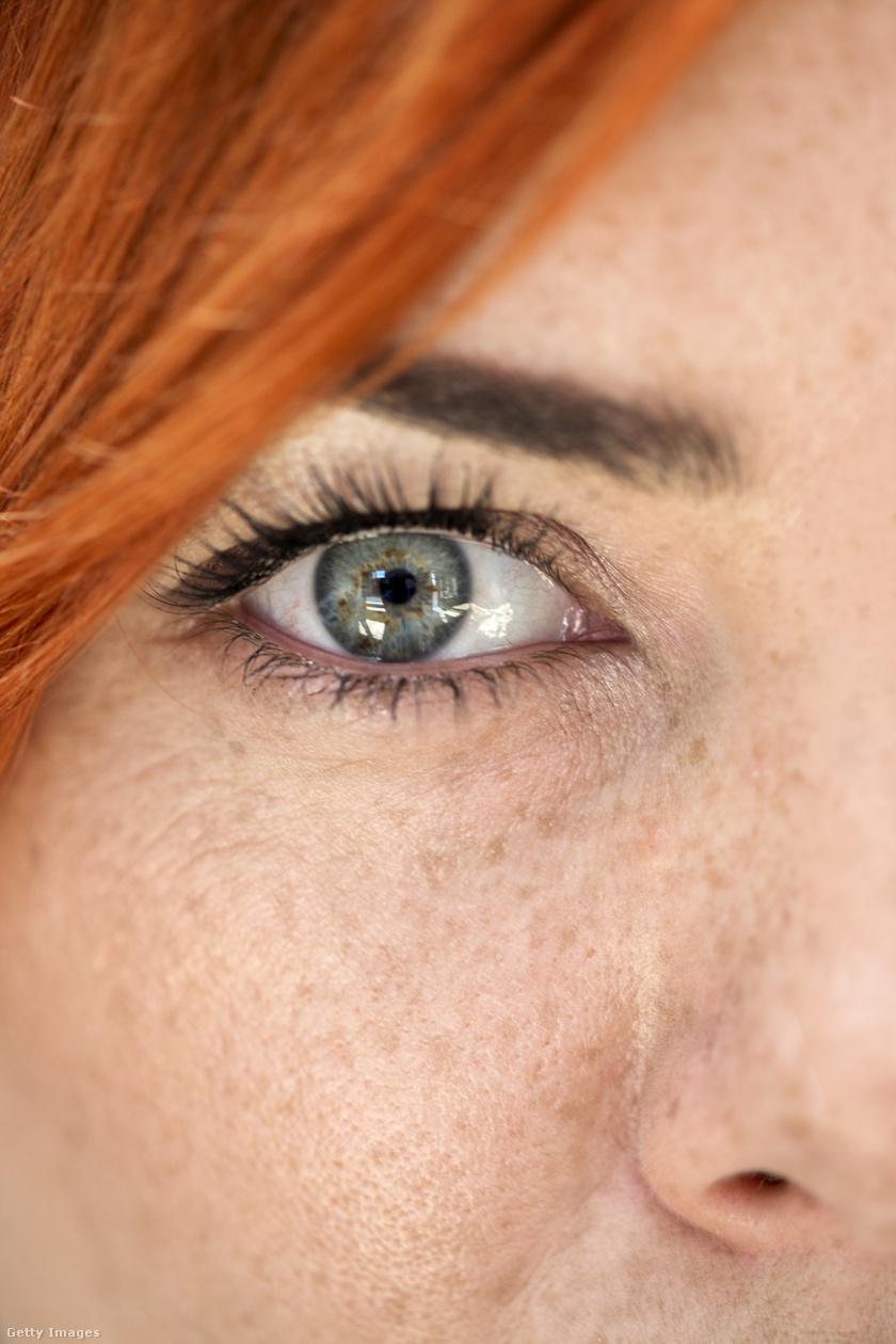 pikkelysömör a haj otthoni kezelsben az arc bőrén vörös foltok fotó