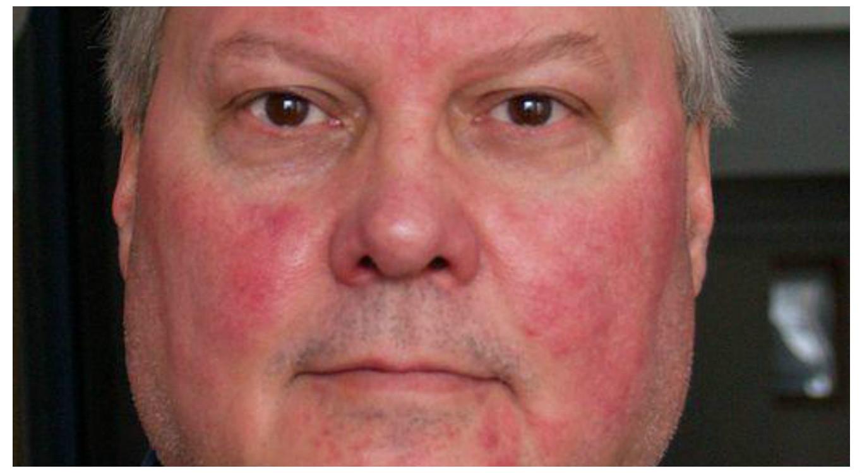 vörös foltok az arcon keményedéssel antiszporum pikkelysömör kezelése