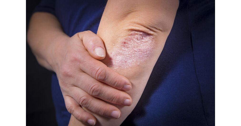 gyógynövényes pikkelysömör kezelése otthon vörös durva foltok viszketnek az arcon