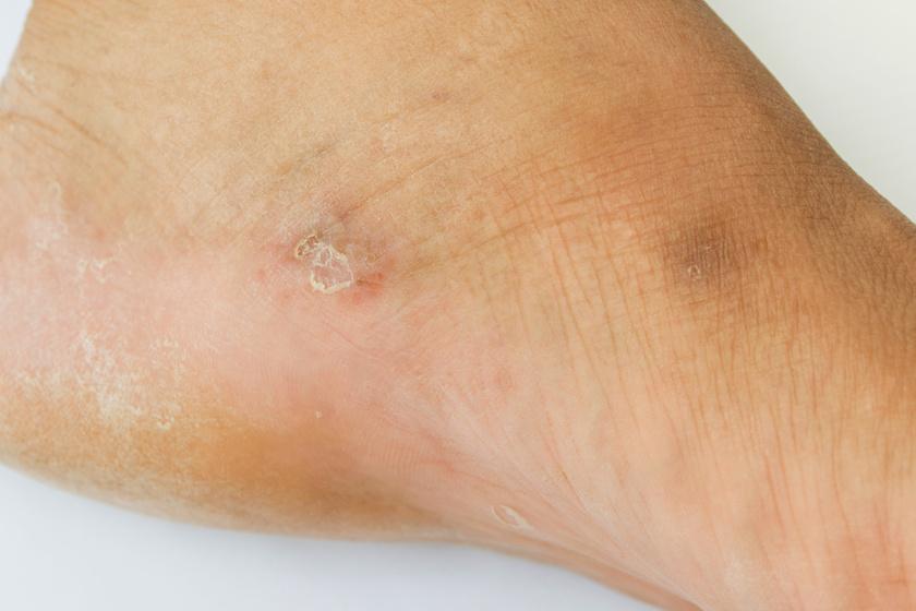 hámló folt a lábán piros hogyan kezelje a súlyosbodott pikkelysömör