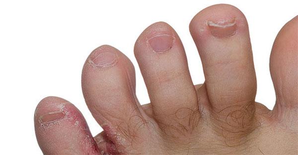 hámló folt a lábán piros pikkelysömör kezelése mézzel