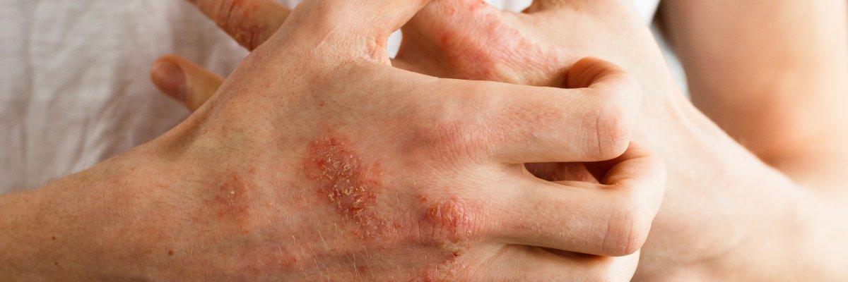 kénsavas kenőcs segít a pikkelysömörben hogyan kezelik a pikkelysmr népi gyógymódokkal