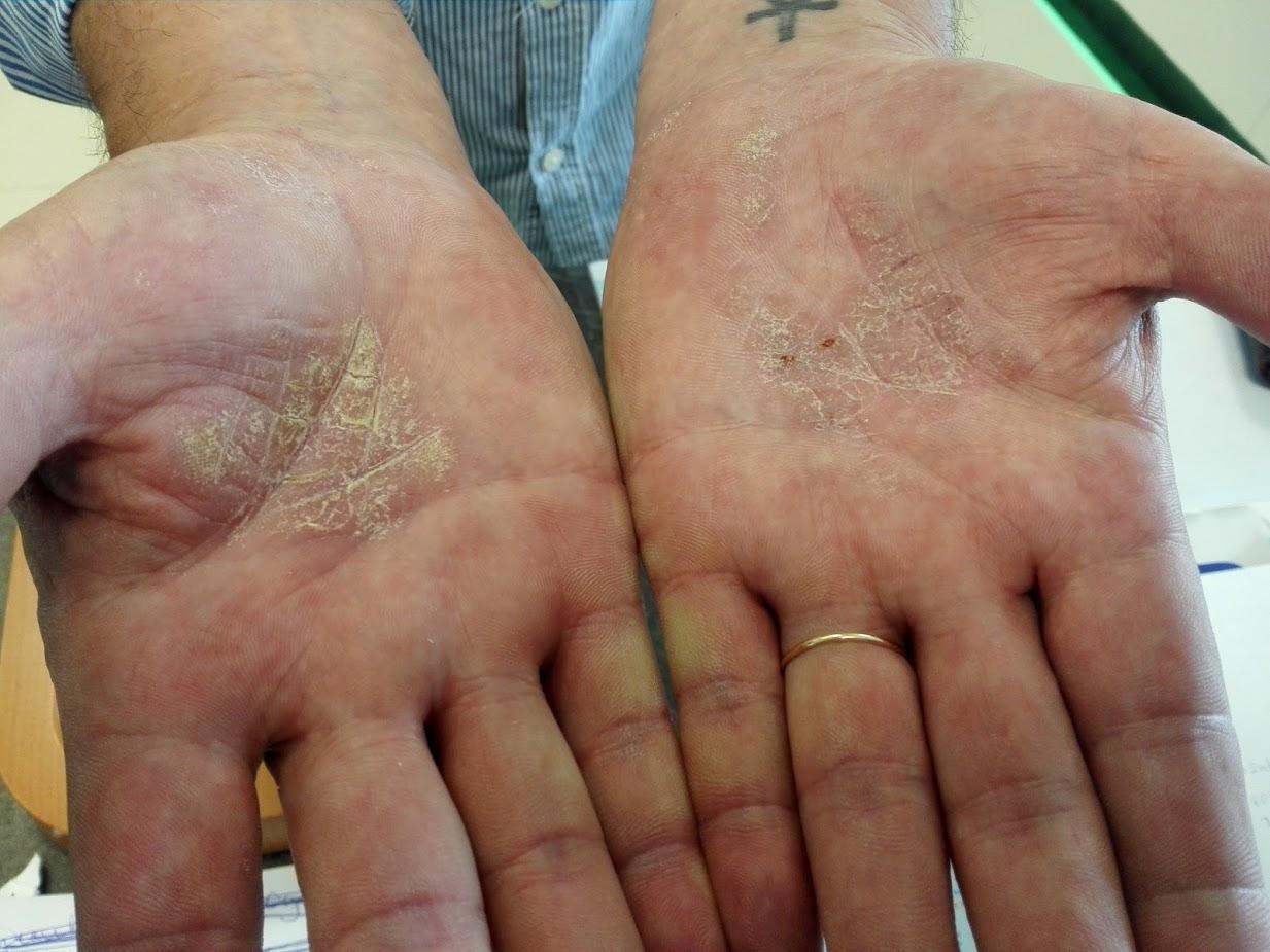 hogyan kell kezelni a tenyér vörös foltjait kurkuma pikkelysömör kezelésére