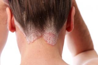 krém pikkelysömör vagy dermatitis ellen vörös folt és induráció a lábán