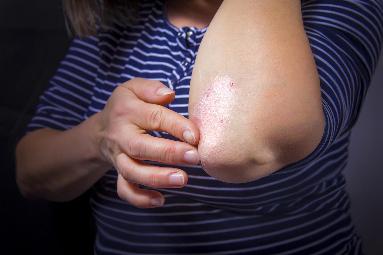 Pikkelysömör esetére: Neoplant krém és arcszesz