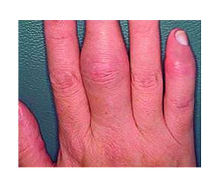 nagymama kezén piros foltok vannak pikkelysömör kezelése sinaflannal