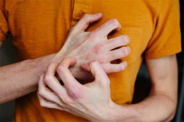 hogyan lehet meggyógyítani az egyszerű pikkelysömör mi szükséges a pikkelysömör kezelésére