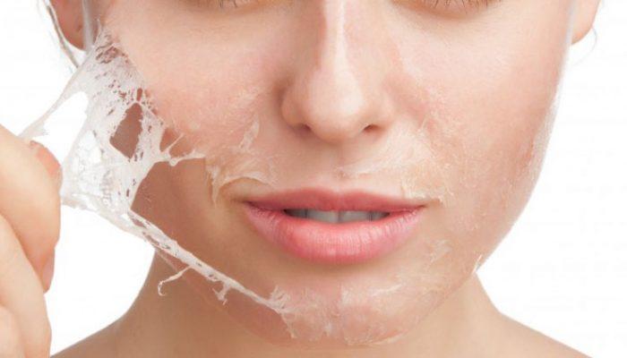 hogyan lehet megszabadulni a vörös folttól az arc kopása után