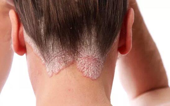 olyan betegségek, amelyekben vörös foltok jelennek meg a bőrön
