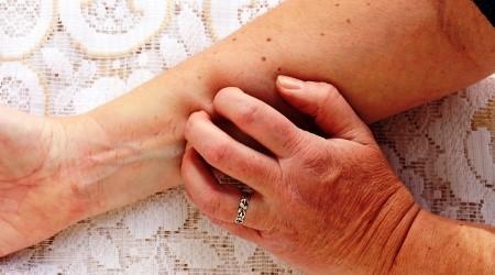 pikkelysmr kezels receptjei néha vörös foltok jelennek meg a kezeken
