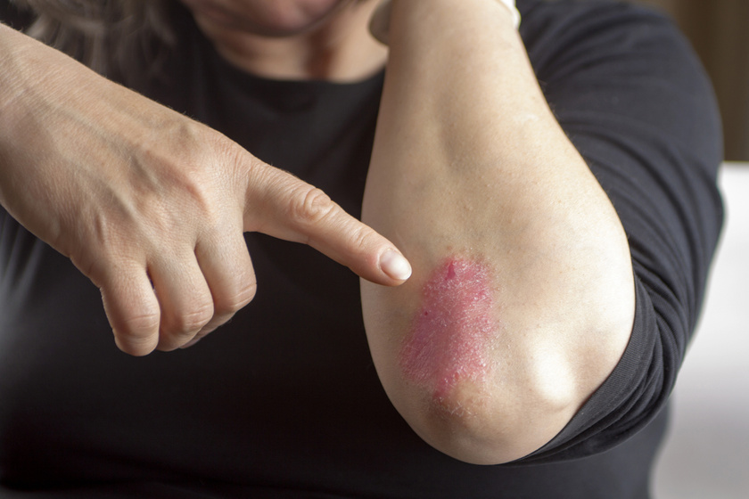 pikkelysömör kezelésére kenőcs kartalin terápiás kezelés a pikkelysömörhöz