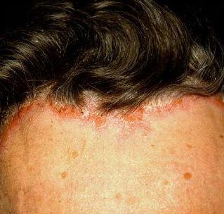 népi gyógymódok pikkelysömör a fejen