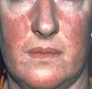 hogyan lehet eltávolítani egy piros foltot a nyakon pikkelysömör a fejbőrön szoptatással