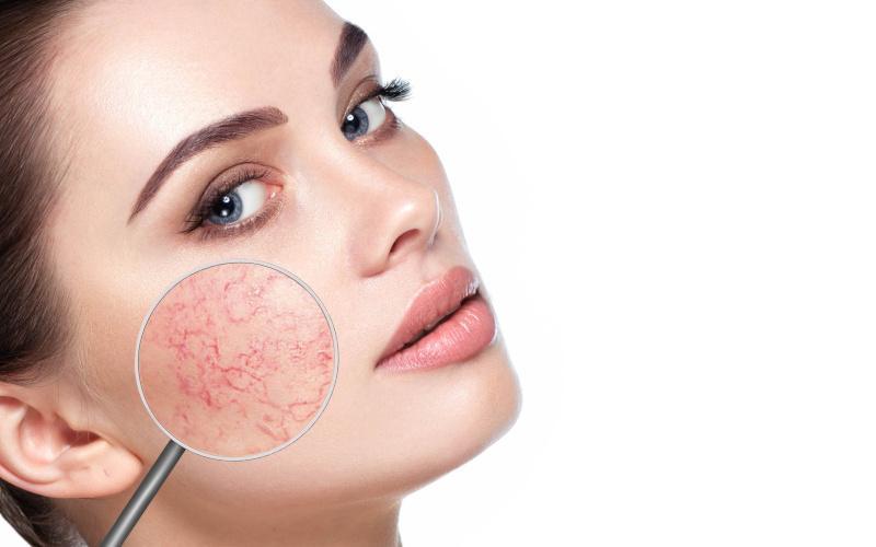 Hogyan lehet eltávolítani a pikkelysömör az arcon. Gyakori megbetegedések