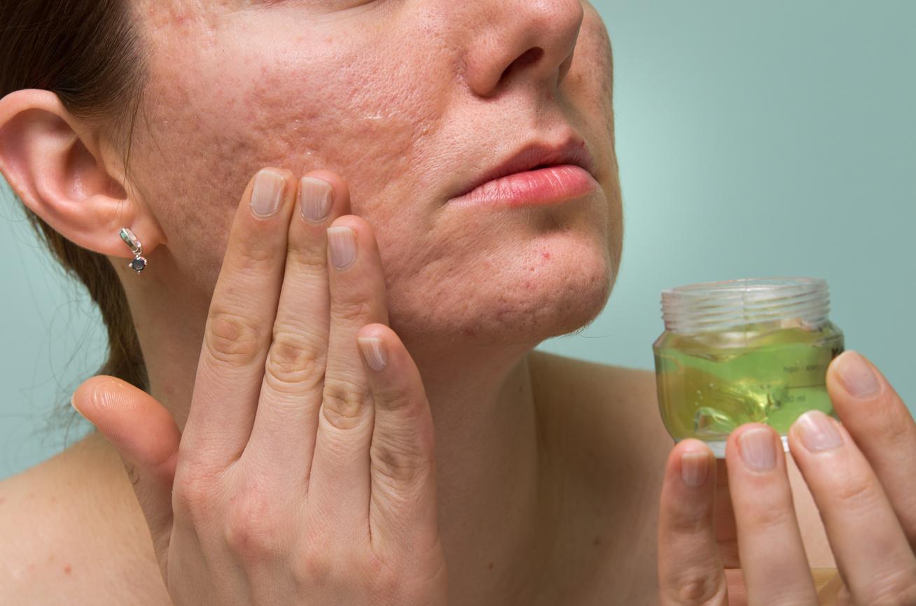 bőrviszketés és piros foltok jelennek meg fotó hogyan kell kezelni pikkelysömör kezelése cikloferonnal