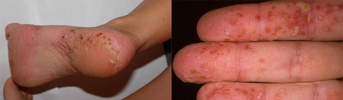 palmar pikkelysömör kezelése népi gyógymódokkal vörös foltok a lábakon duzzanattal