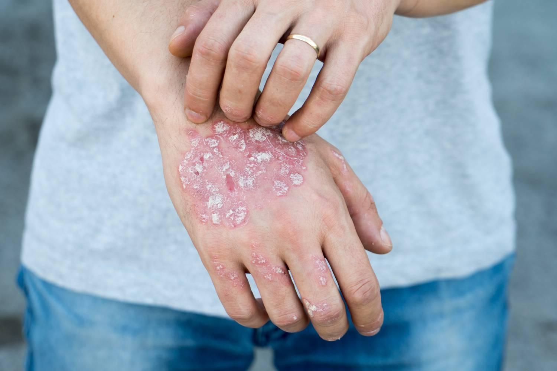 pikkelysömör dió kezelés vörös foltok az arc bőrén okoznak