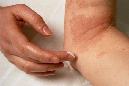 a legkorszerűbb pikkelysömör kezelés a lábán vörös folt, mint a kiütés