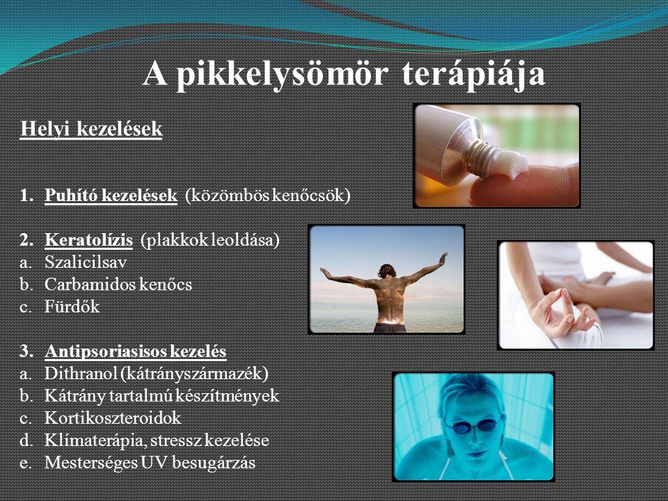 pikkelysömör kezelésének előadása balzsam karavaeva vitaon pikkelysömörből