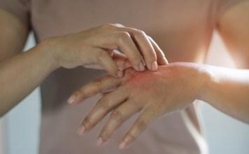 skarlát és pikkelysömör kezelése