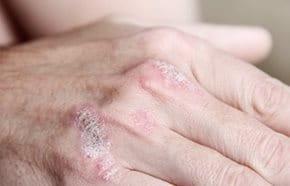 vörös foltok a HIV bőrén kpzelnek-e gygyszert a pikkelysmrre
