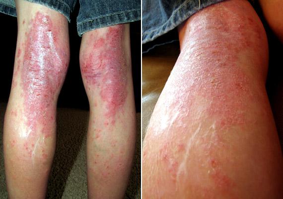 száraz dermatitis pikkelysömör kezelése torokfájás és vörös foltok a kezeken