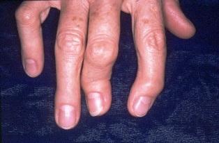 vörös folt a szemben az ütéskezelés miatt hogyan lehet pikkelysömör gyógyítani a kezek
