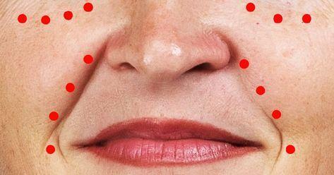pitsunda pikkelysömör kezelése vörös foltok az arcon az alkoholtól