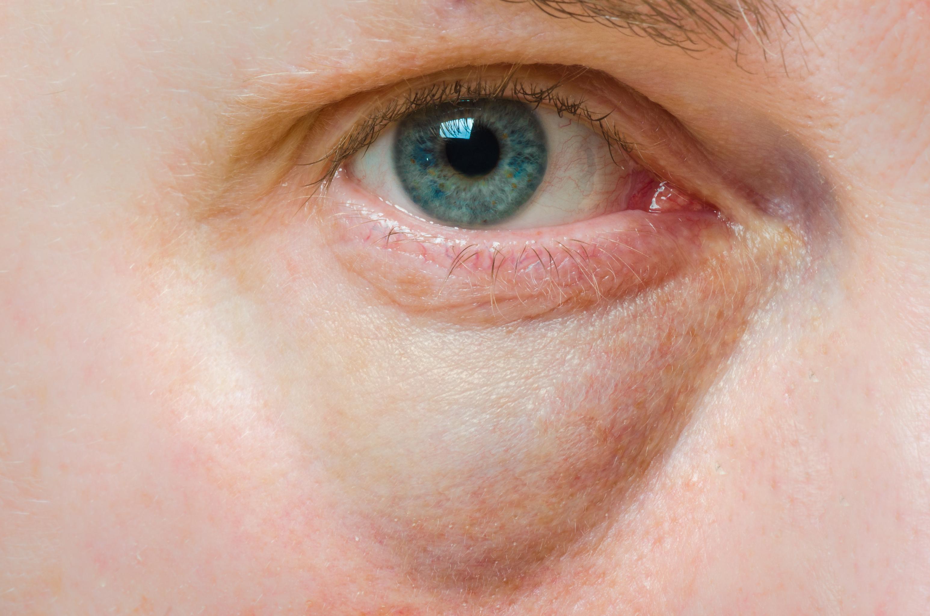 vörös folt hámlik a szem alatt kacsa pikkelysömör kezelése