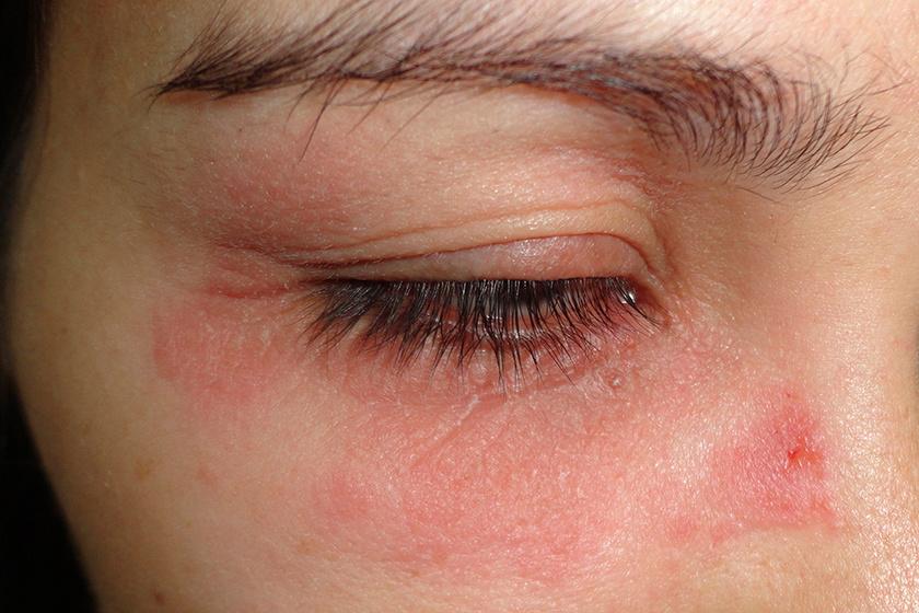vörös folt hámlik a szem alatt otthoni pikkelysömör kezelése mézzel