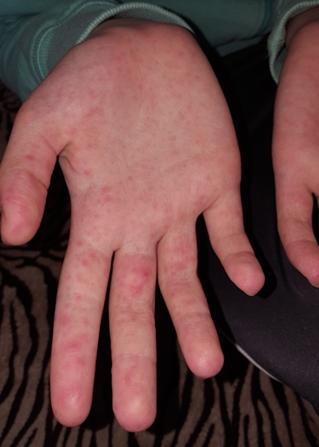 vörös foltok a kézen az ujjak között calamine gél pikkelysömörhöz
