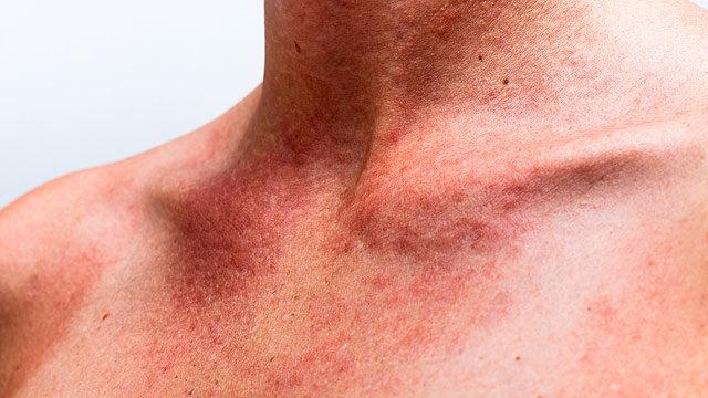 keretes vörös foltok a karon gomba vörös foltok a test kezelésén