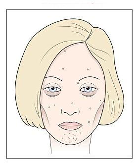 vörös foltok az orr és a szemöldök körüli arcon george pegano pikkelysömör kezelés természetes úton