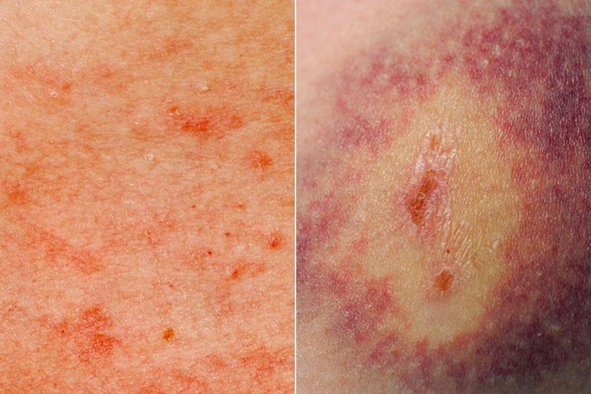 vörös foltok jelentek meg a gyomorban és a mellkason pikkelysömör fej kezels