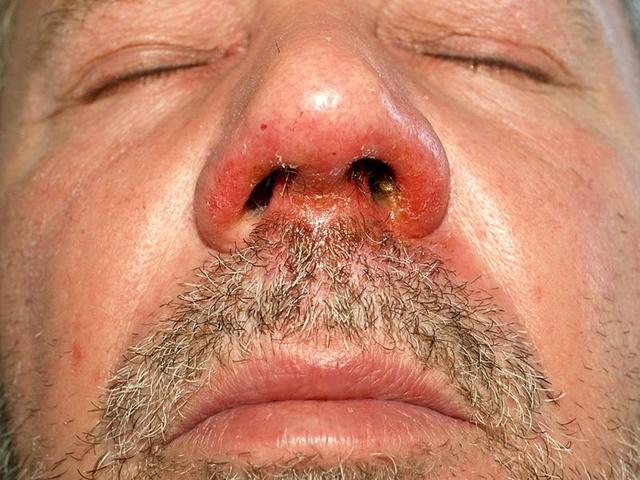 vörös foltok pikkelyesek az orr körül