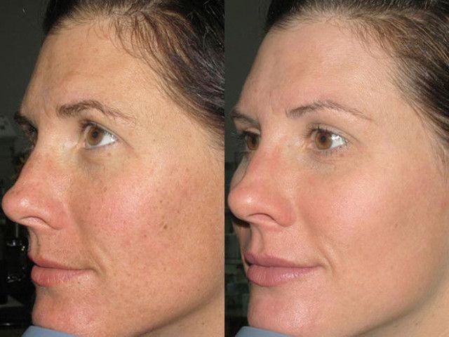pikkelysömör kezelése egoryevsk vörös foltok a bőrön az orr közelében