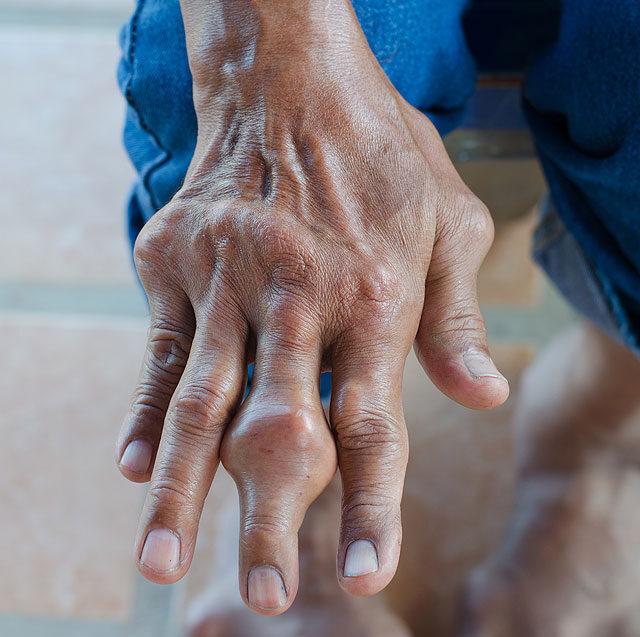 a lábán periodikusan piros folt viszket