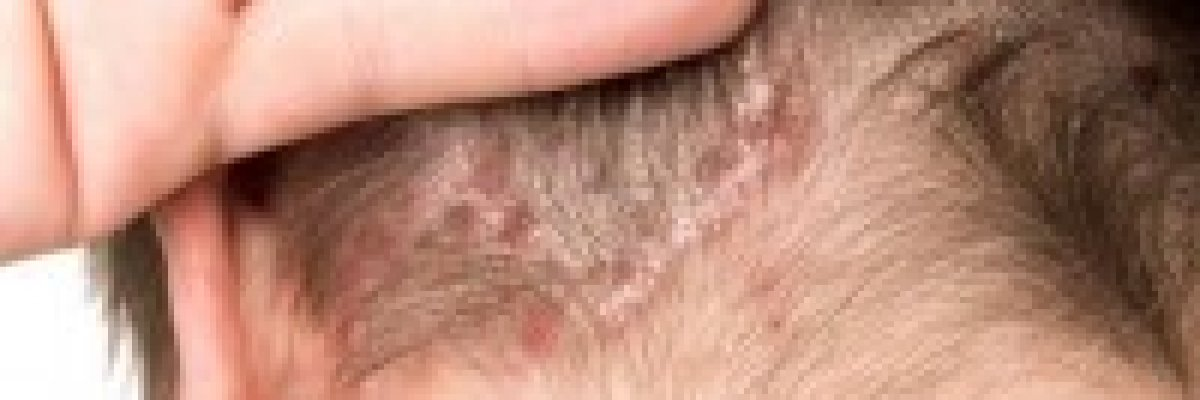 emolium krém vélemények pikkelysömörhöz vörös foltok a bőrön az orr közelében